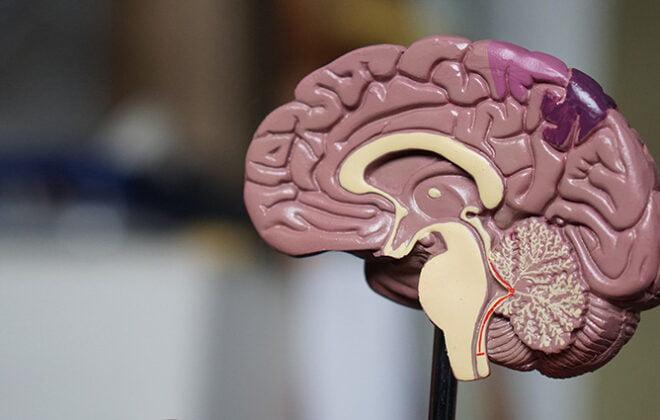 Mes-de-conciencia-Tumor-Cerebral